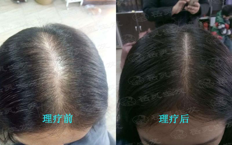 正确的养发护发才能防脱生发