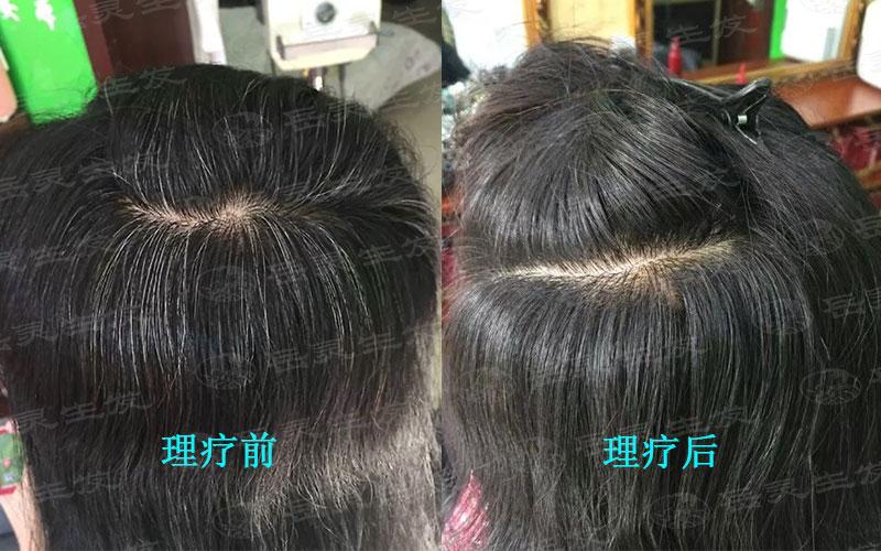 哪些养发护发有利于白发转黑发