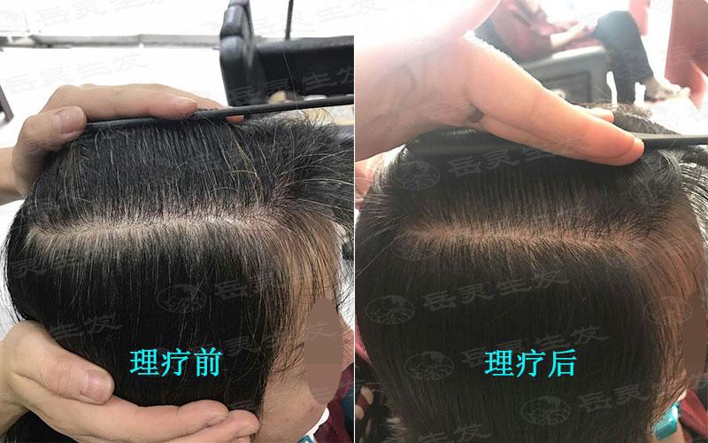 少白头如何养发护发能白发转黑发
