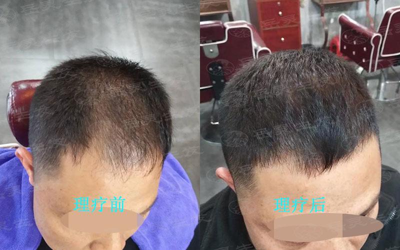我们防脱生发的养发护发注意事项