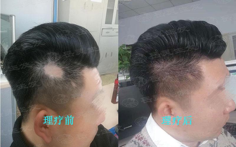 想要防脱发我们该如何养发护发