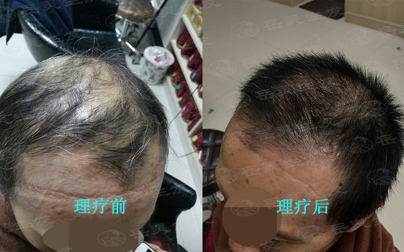 防脱生发必须注意的养发护发事项