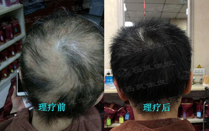 防脱生发的养发方法有哪些