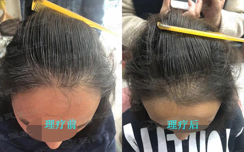 白发转黑发必须注意养发护发的方法