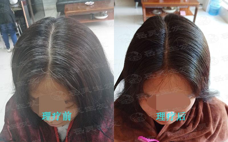 预防白发增多的养发护发方法