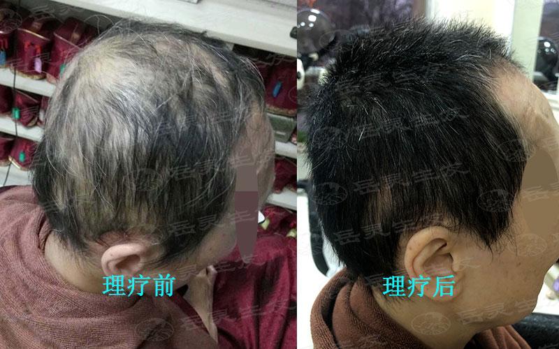 如何养发能够防脱生发你知道吗?