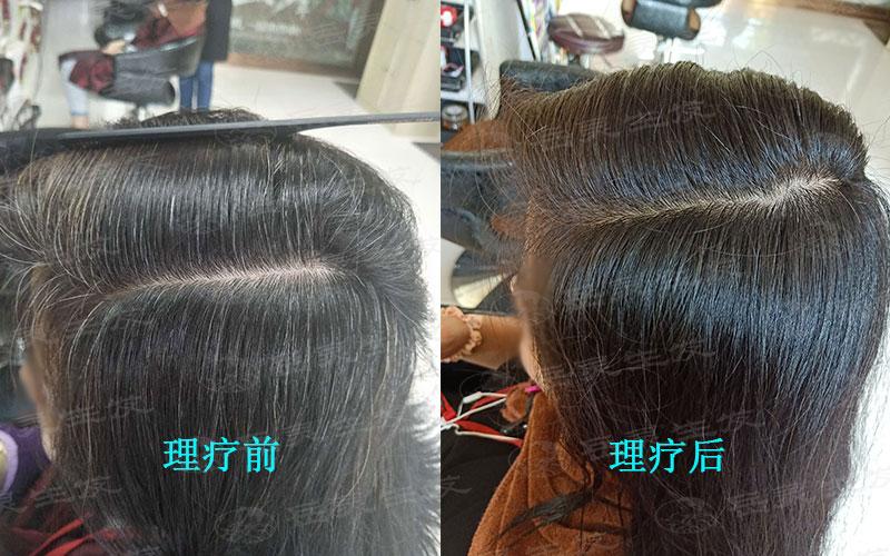想要白发转黑发你得知道如何养发