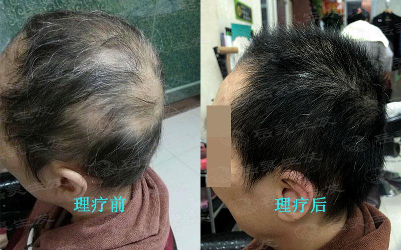 食疗养发对于防脱发是很重要的
