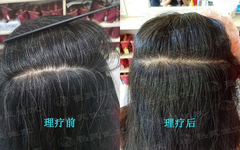 如何才能将白头发变黑的养发方法