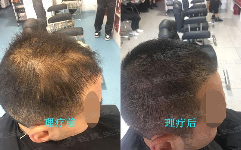 防脱生发你真的会养发吗
