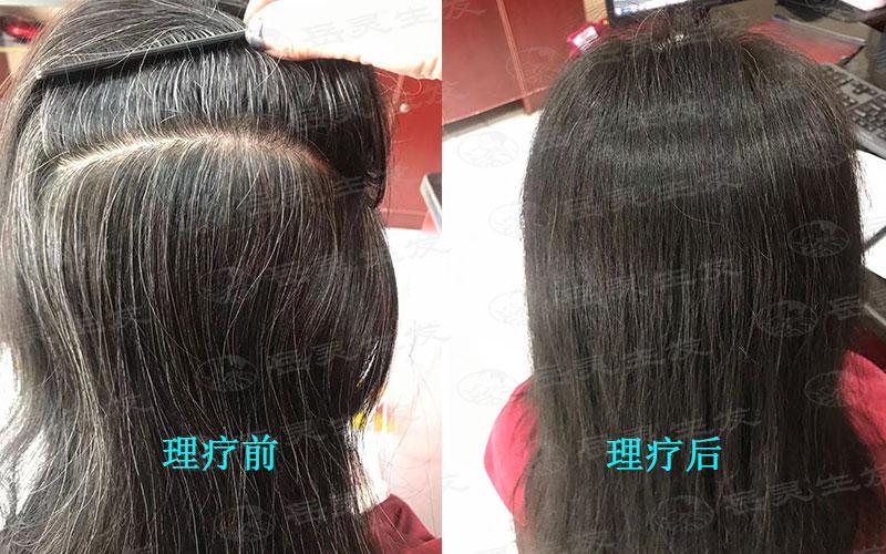 白发转黑发不同原因有不同养发方法