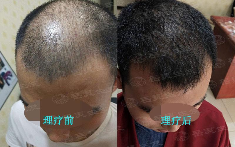 如何更好的防脱发你真的知道吗?