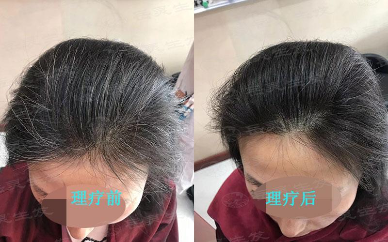如何将白发变黑我们该如何养发