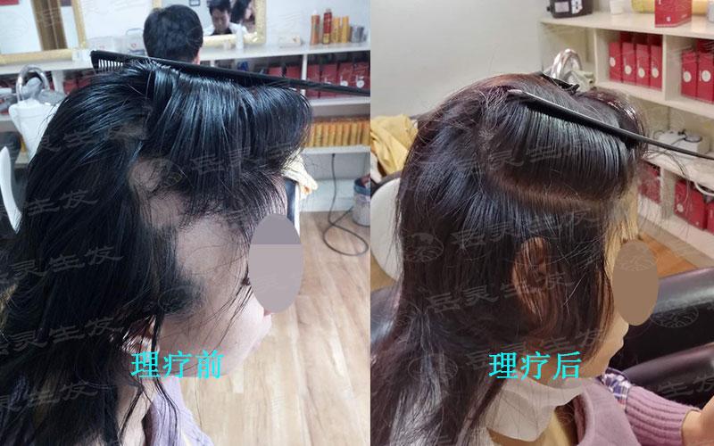 如何养发能更好的防脱生发呢