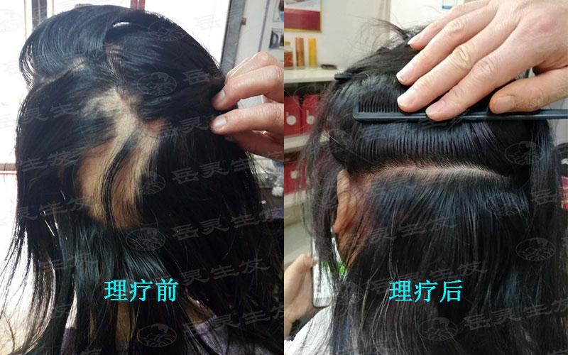 如何防脱生发的养发护发方法