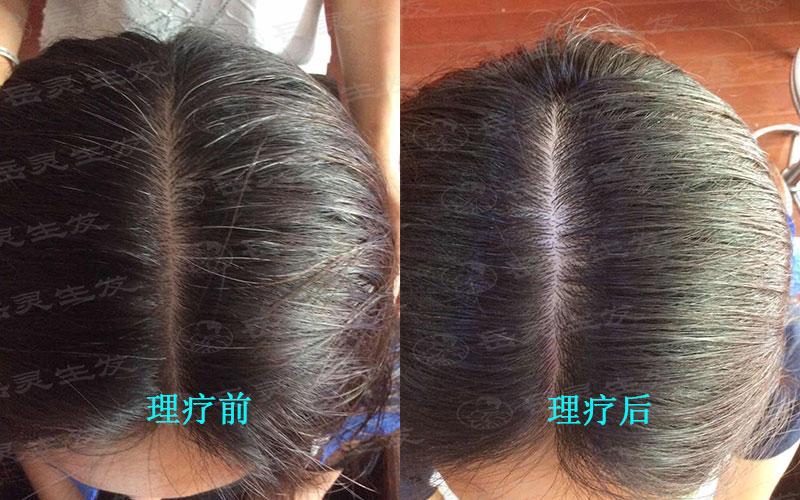 长白头发的原因及转黑发的方法