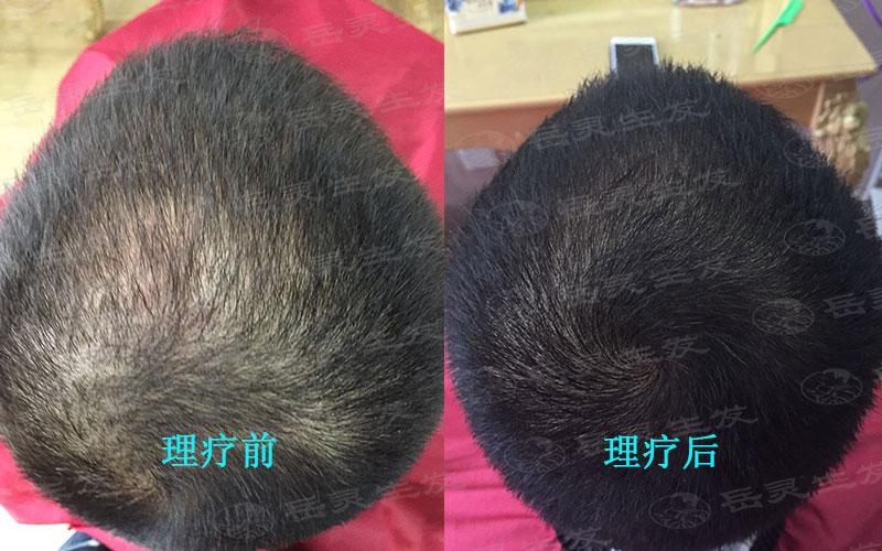 如何预防脱发才能比较好