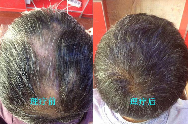 长期失眠会导致脱发吗?