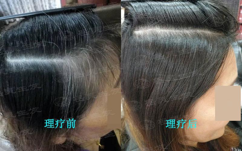 如何养发能将白头发转黑发