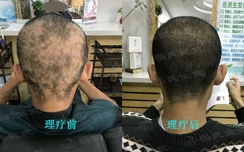 中年男人防脱生发的养发护发事项