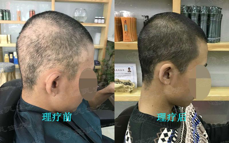 关于中年人防脱生发的养发事项