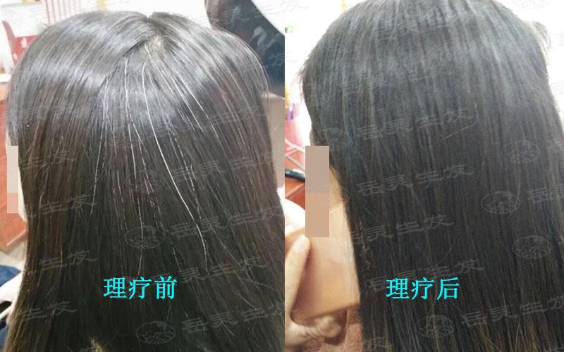女人过早长白头发该如何转黑?
