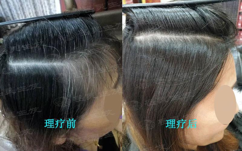 白发转黑发该如何养发呢?