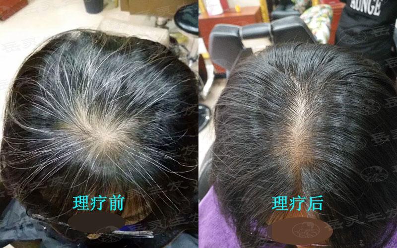 怎样把白头发养黑的方法