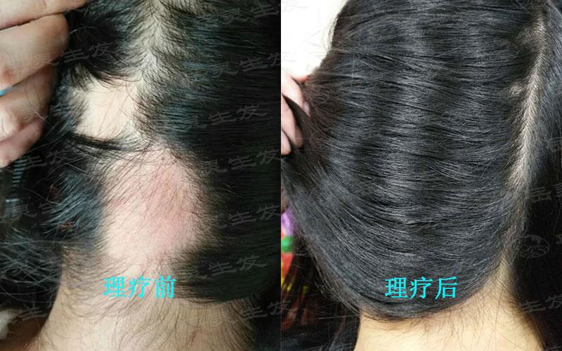 如何有效防脱发的养发护发措施
