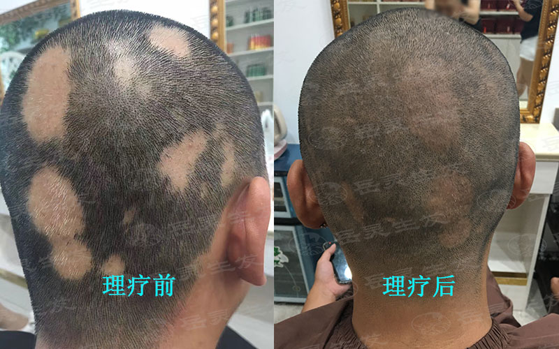 坚持运动是不是有利于防脱发
