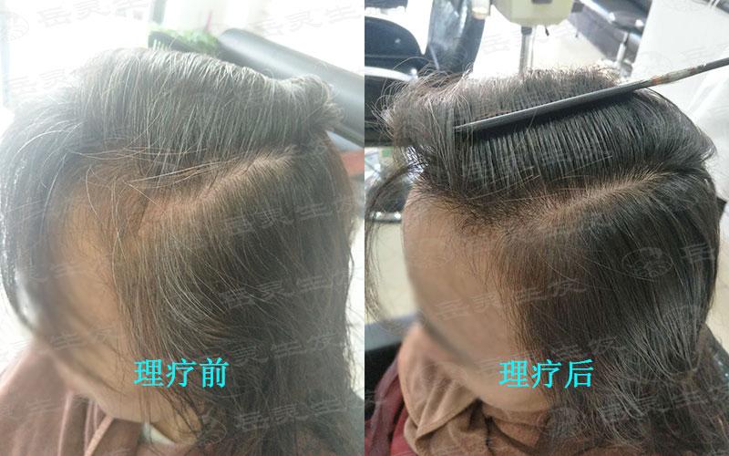 白头发是剪是拔?如何才能变黑?