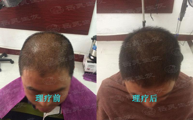 秋天如何养发能够预防脱发