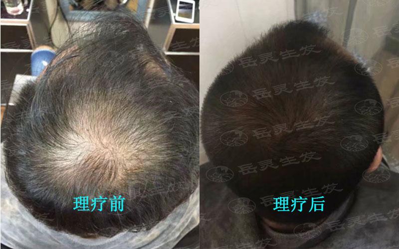 防脱生发中正确的梳发也是关键