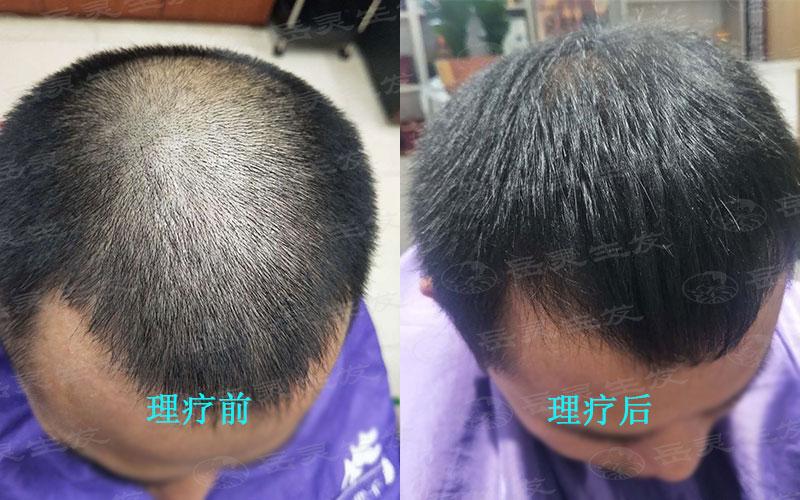秋季日常脱发的四种原因