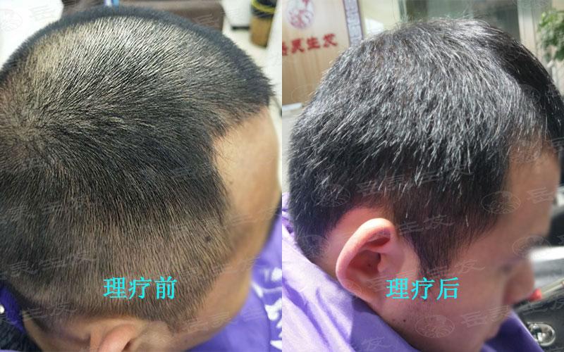 秋季养发是预防脱发的季节