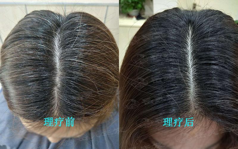 白发变黑发的成功的方法