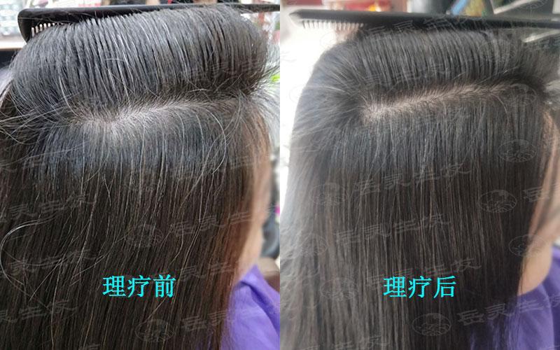 如何能使白发变黑的养护