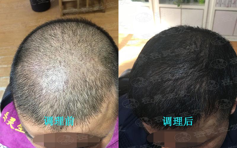 年青人如何防脱发和生发养发的方法