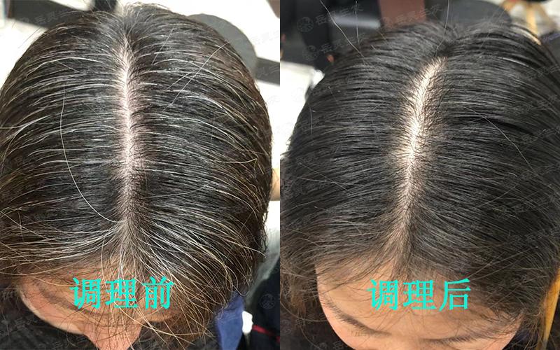 白发如何变黑的养发护发方法