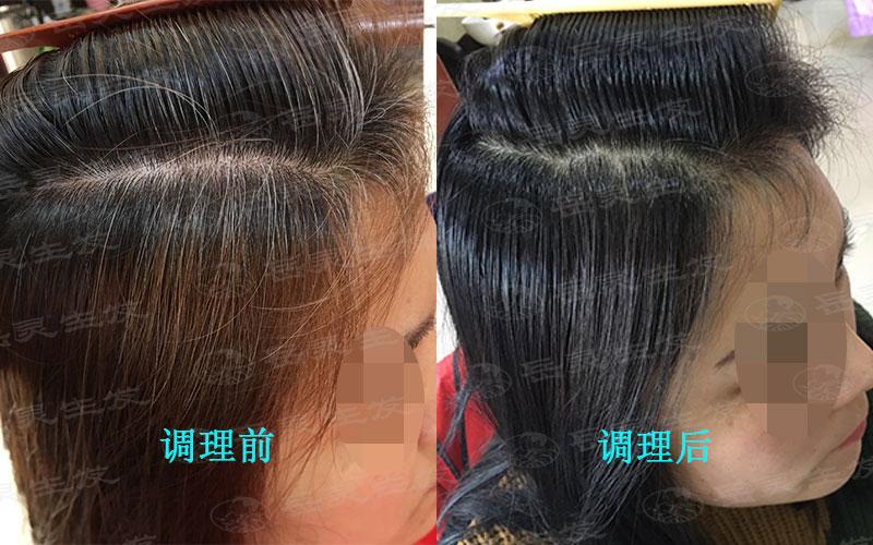 白发多怎么办来养发护发