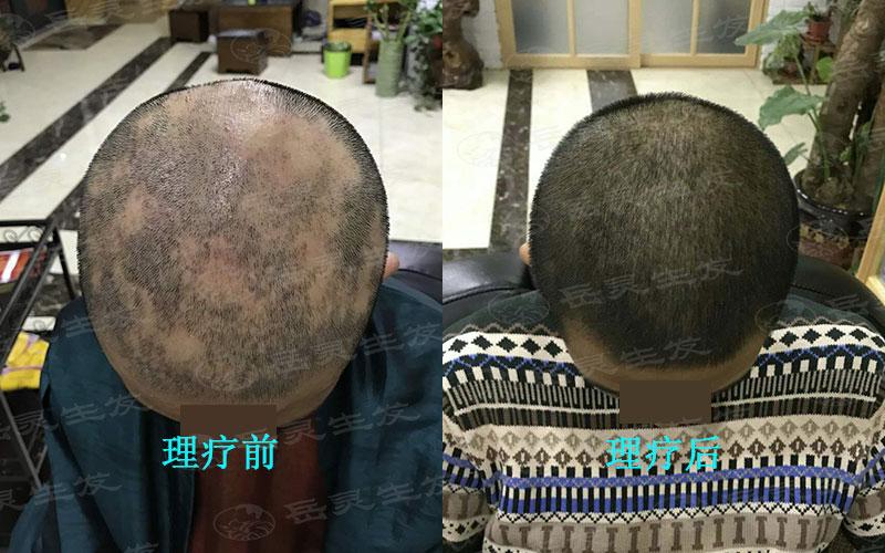 中医如何防止脱发生发?
