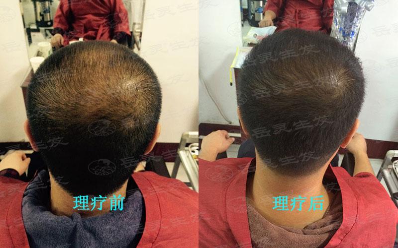 有效的防脱生发方法