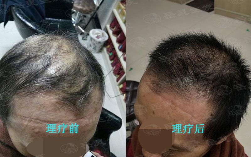 如何保养秀发达到防脱生发的效果