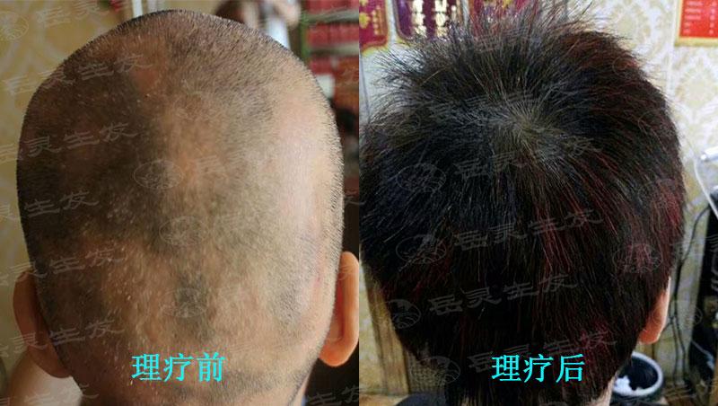 要怎么养发才能解决脱发变生发