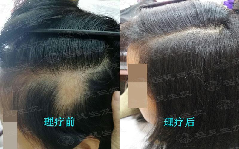 经常掉头发什么办法能生发