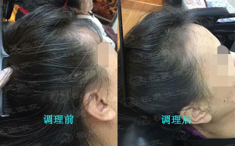 白发转黑发的方法,这样养发更好