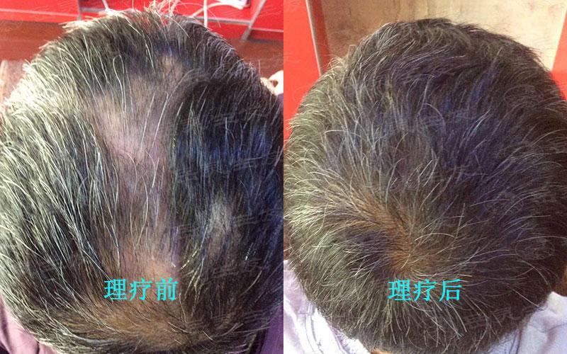 按摩头皮防脱生发的好方法