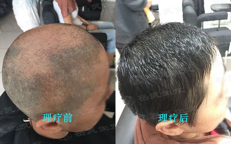 什么防脱生发方法能阻止突发性掉发
