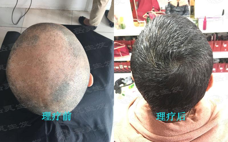 防脱生发要有正确的养发方法