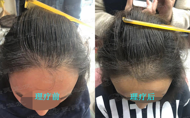 如何养发护发轻松白发转黑发